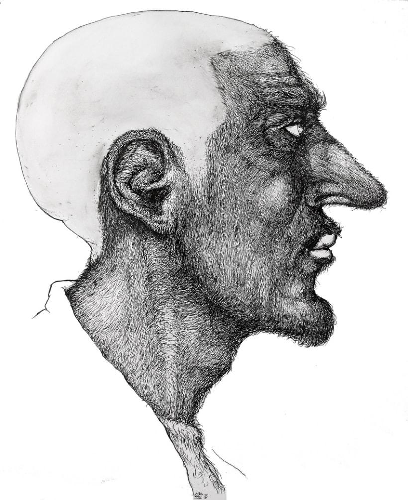 Derrame Cerebral 7