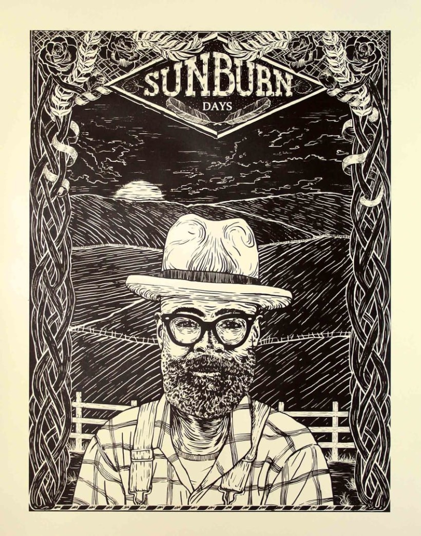 SUNBURN DAYS 2