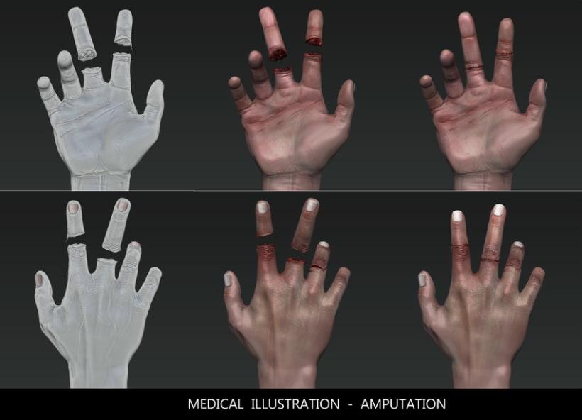3D HAND _ Medical illustration to walking dead XD 2
