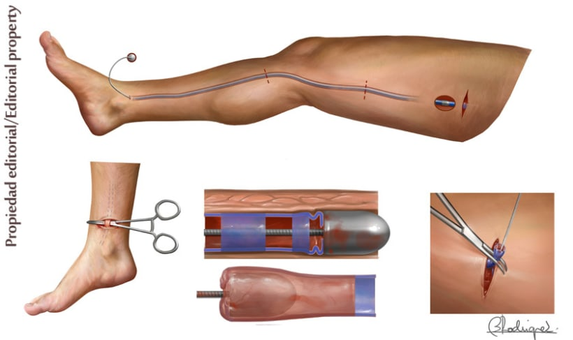 Atractivo Definición De La Anatomía Sistémica Friso - Anatomía de ...