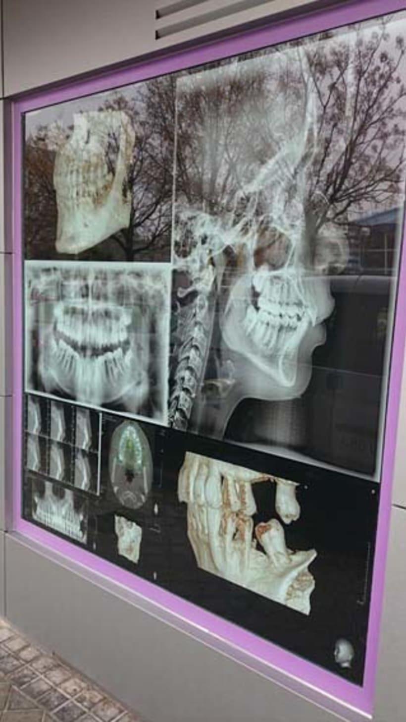 Diseño Vinilos Interiores-Clínica Dental 4