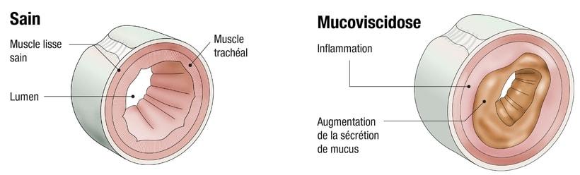Infografías médicas 1