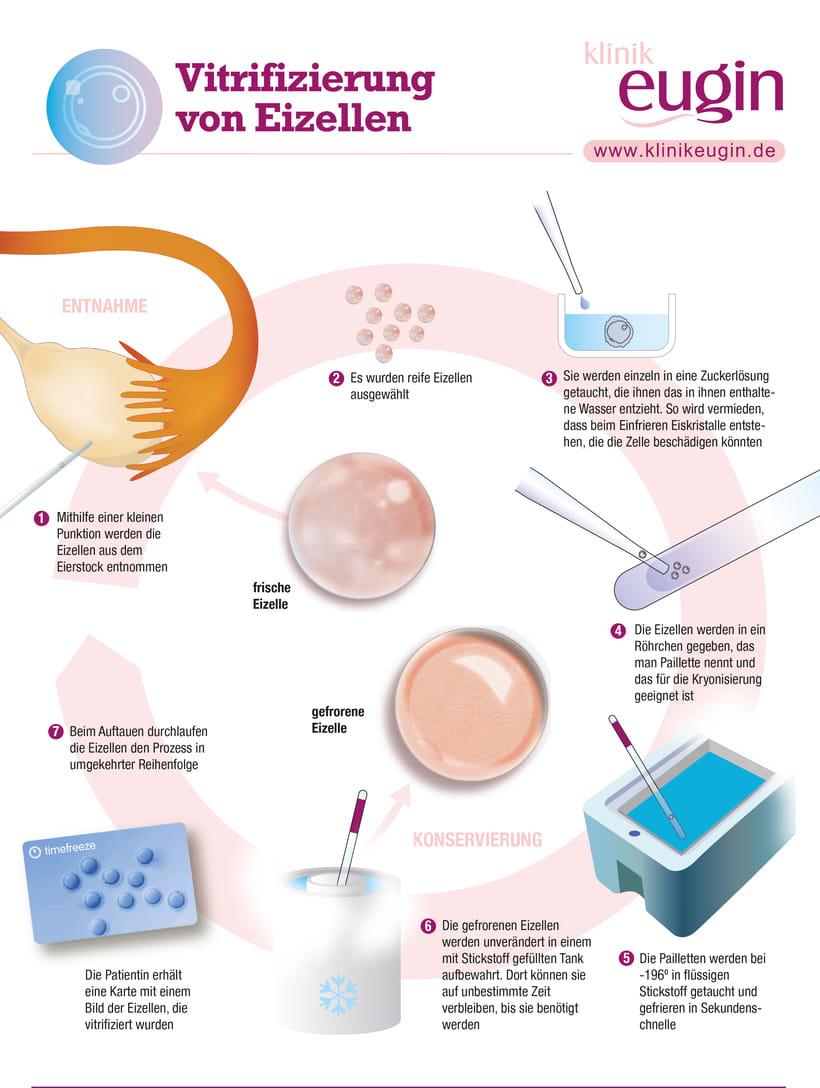 Infografías médicas 4