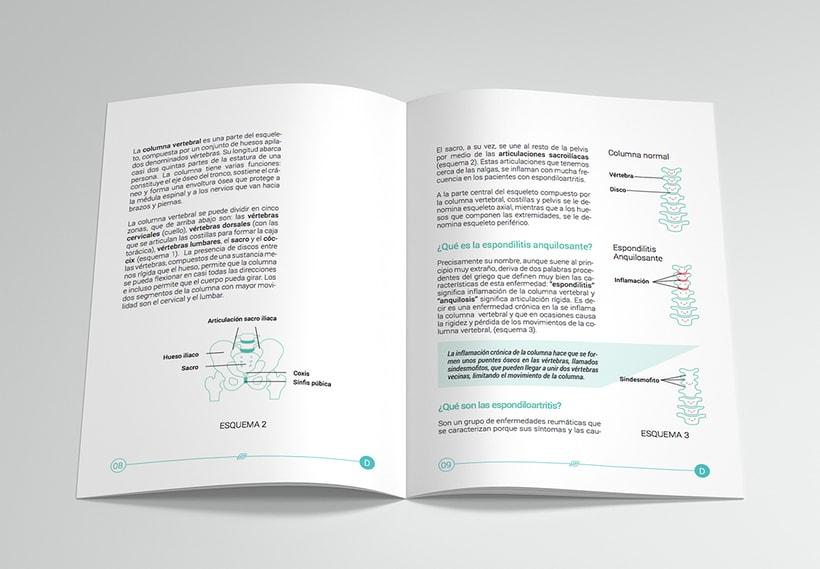 Revista informativa sobre la Espondilitis anquilosante 1