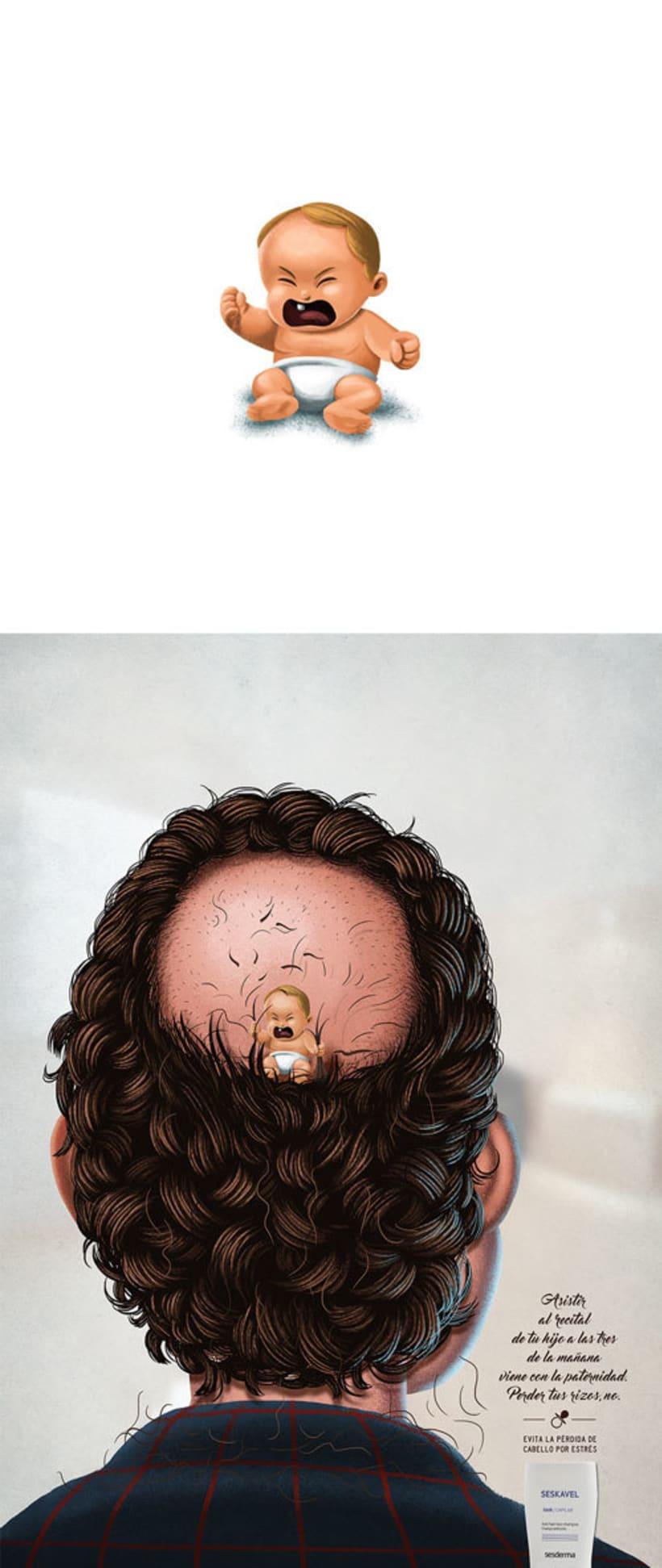 Seskavel - Pérdida de cabello 5