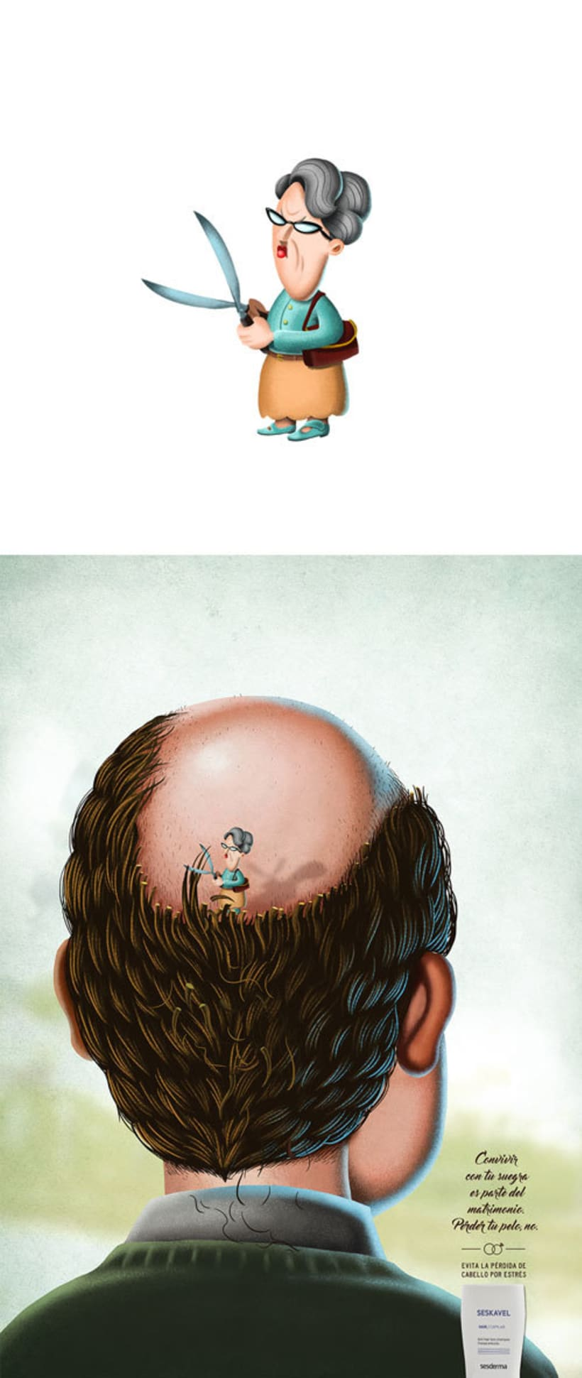 Seskavel - Pérdida de cabello 6
