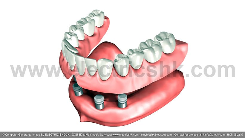 Productos dentales 3D CGI 2004 2