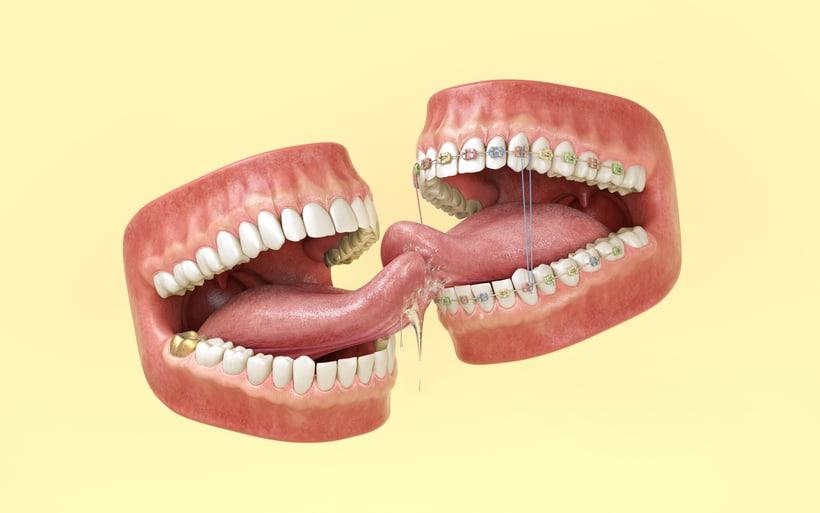 Teen Tongues 4