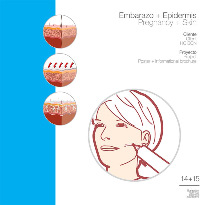 Embarazo • HCBCN 1