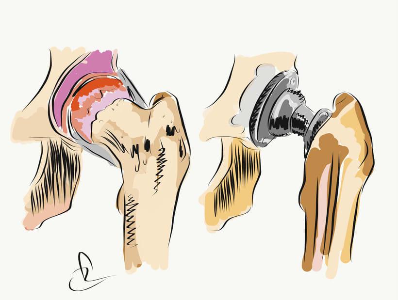 Prótesis de rodilla 2