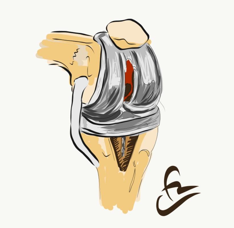 Prótesis de rodilla 3