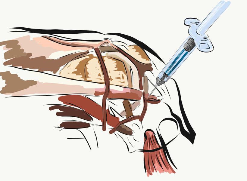 Prótesis de rodilla 4
