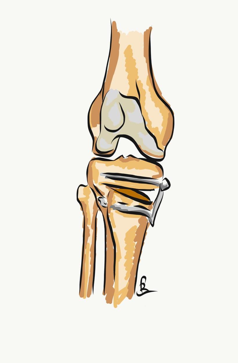 Prótesis de rodilla 8
